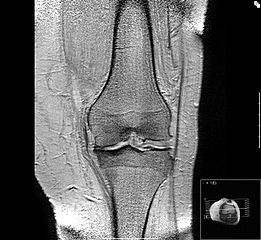 Arthritis in knee MRI