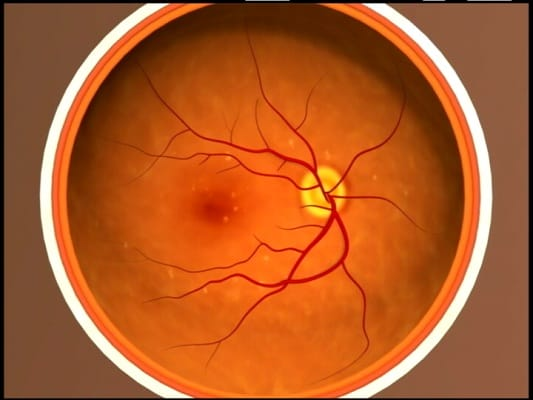 early macular degeneration