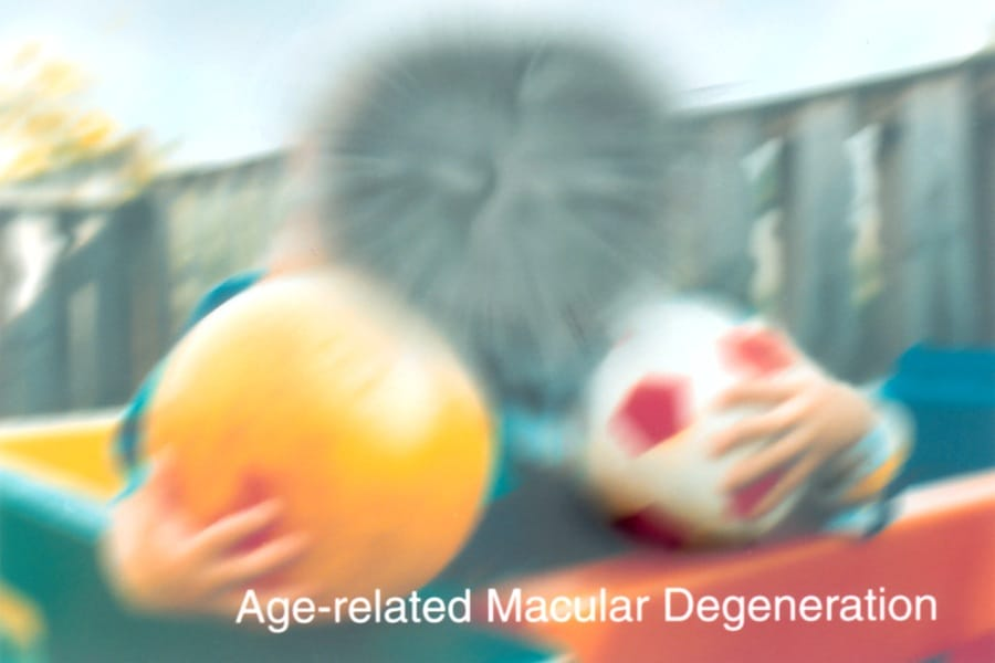 Risk Factors Of Macular Degeneration